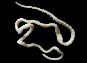symptomen wormen mens
